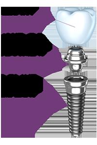 implant description