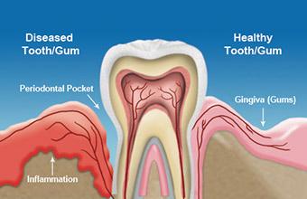 gum disease illistration