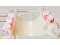 No-metal partial dentures