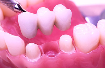 With a bridge, the patient's teeth must be ground down to support the restoration.